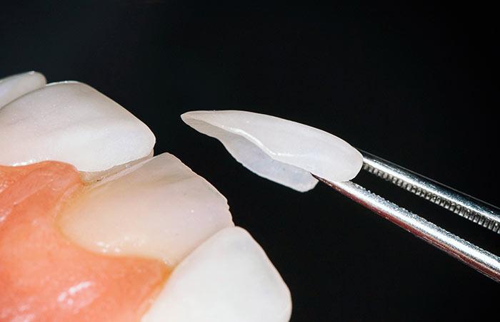 Carillas dentales finas