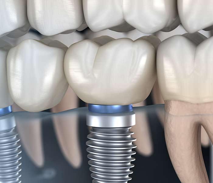 Corona dental implante